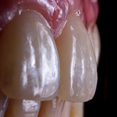 Texture of the Teeth Intraoral